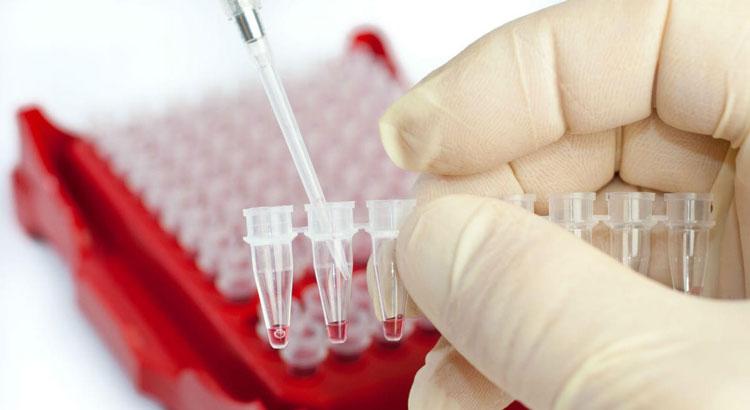 какие анализы нужно сдать для простатита