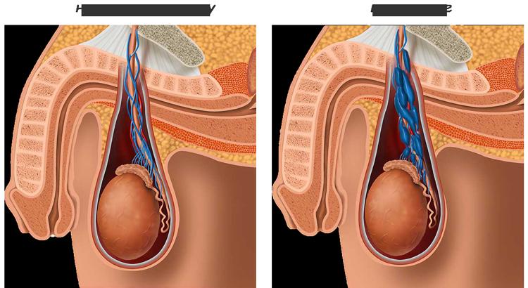 Влияет ли варикоцеле на простату
