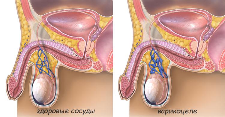 может ли от простатита болеть яичко
