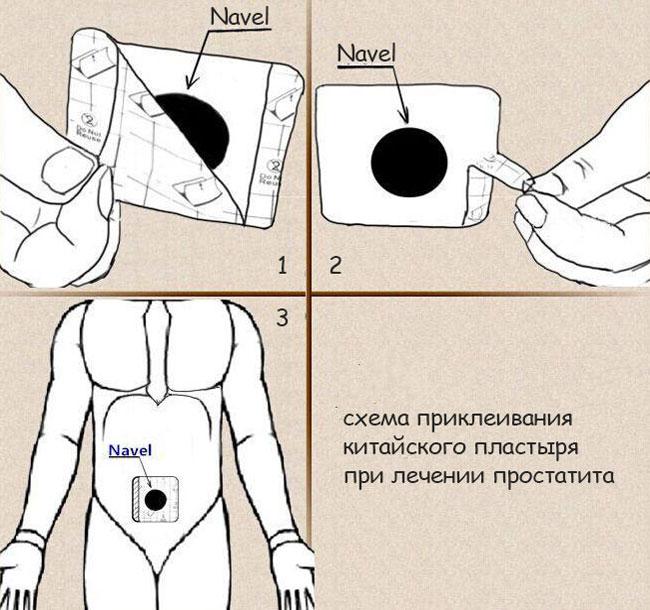 Микоплазма у мужчин: симптомы и лечение микоплазмоза