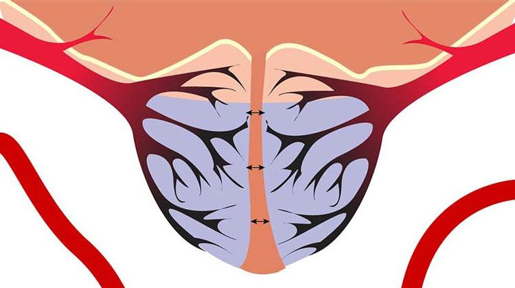 Нарушение кровообращения простатит китайские пилюли от простатита и аденомы