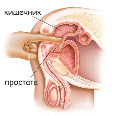 Простата с кальцинатами и секс