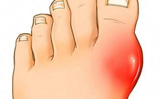 Диагностика и лечение артрита суставов пальцев ног
